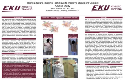 Using a neuro-imaging technique to improve shoulder function